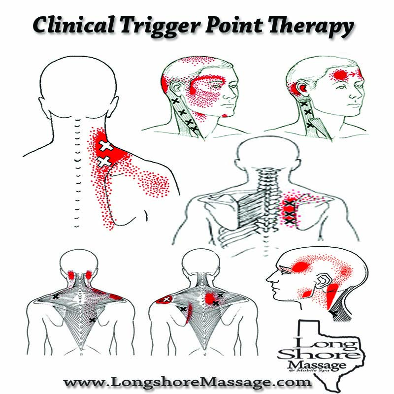 Clinical Trigger Point Therapy